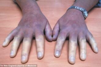 Cum au ajuns mainile acestei femei sa arate asa. Boala grava de care sufera