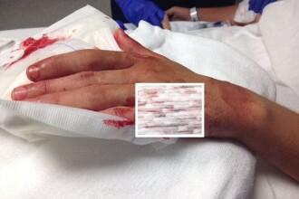 Un surfer de 14 ani, atacat de rechin pe coasta Floridei, la doar 100 de metri de mal. Cum a reusit sa scape