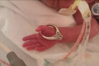 Avea doar 450 de grame la nastere, iar medicii i-au dat sanse minime de supravietuire. Cum arata fetita dupa 2 luni. FOTO