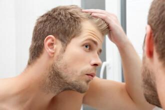 Ce legatura exista intre cafea si caderea parului la barbati. Cum poti evita aparitia calvitiei