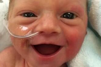 S-a nascut prematur, dar le-a oferit o surpriza neasteptata parintilor.