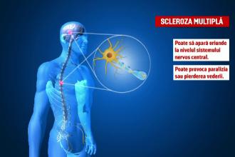 România nu are centre speciale pentru tratarea pacienţilor români diagnosticaţi cu scleroză multiplă
