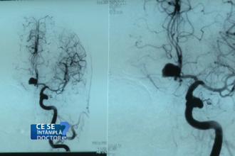 Accidentul vascular cerebral, mai frecvent la fumători decât la nefumători