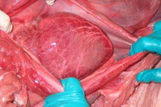 Visul cardiacilor s-ar putea implini! O inima functionala, fara donator