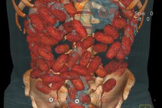 Asa arata 72 de bile de cocaina in intestinele unui om. Tomografii 3D