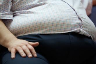 Un tanar obez a slabit peste 50 de kilograme pentru primul sarut din viata lui. Cum arata inainte si dupa ce a slabit. FOTO