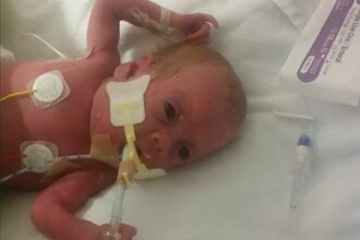 A nascut cu 4 luni mai devreme, iar medicii i-au zis ca bebelusul are 1% sanse de supravietuire. Cum arata acum fetita