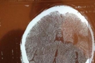 Chipul lui Iisus Hristos aparut intr-o tomografie. Ce s-a intamplat cu femeia careia i s-a intamplat
