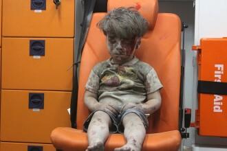Noua viață a lui Omran, copilul-simbol al războiului din Siria. FOTO