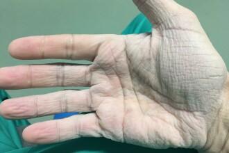 Cum arată mâna unui chirurg român după 12 ore de operații la 30 de grade