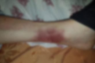 Pacient legat de mâini şi picioare de patul din salon, într-un spital din Iaşi. Acuzaţiile familiei