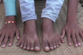 S-a născut cu 24 de degete, iar rudele vor să-l sacrifice. Ce le-a spus un vrăjitor