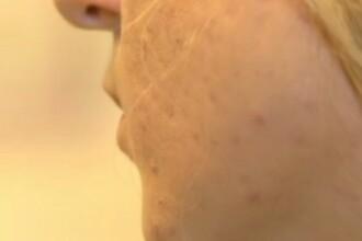 Cum pot fi evitate urmele provocate de acnee. Sfaturile specialiștilor