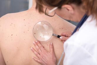 Terapia prin care bolnavii de cancer pot avea cu 50% mai multe șanse de supraviețuire