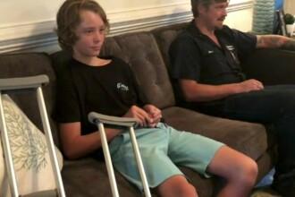 Băiat de 12 ani, mușcat de un rechin. Puștiul a povestit cum s-a întâmplat