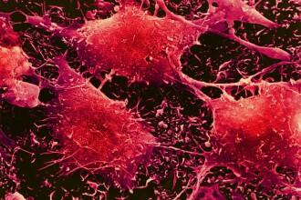 Studiu: Veninul albinelor europene poate distruge celulele cancerului de sân