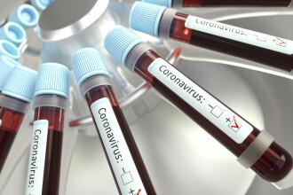 OMS: Țările sărace vor primi 120 de milioane de teste de depistare rapidă a COVID-19