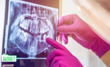 De ce nu este bine să fumăm și să mâncăm produse lactate după intervenții în cavitatea orală