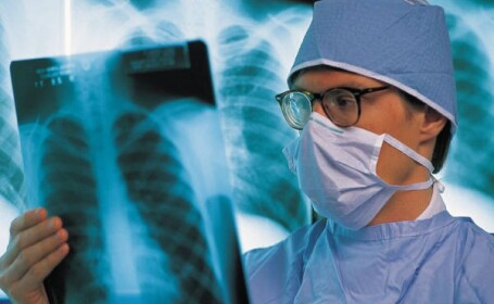 doctor, radiografie