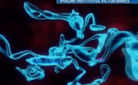 O descoperire a medicilor romani ofera o sansa bolnavilor care sufera accidente vasculare cerebrale