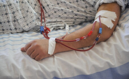 perfuzie, bolnav de cancer, oncologie