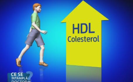 Colesterolul marit inseamna imbatranire accelerata. Sfaturile medicilor pentru a imbina armonios dulciurile cu sportul