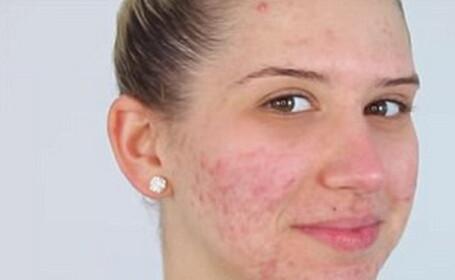 machiaj acnee