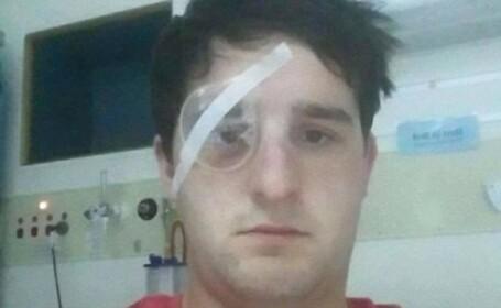 Un fotbalist si-a dat in judecata fostul club fiindca si-a pierdut vederea. Cu ce a aruncat in el un oficial. FOTO