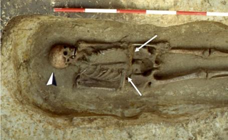 schelet cu lama in loc de mana