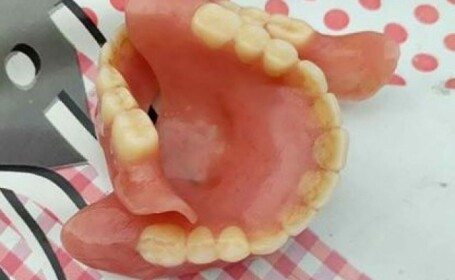 Un român și-a scos la vânzare dinții de plastic. Prețul pe care îl cere