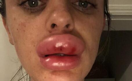 Tânără desfigurată după ce și-a mărit buzele la o petrecere. Ce a aflat la spital