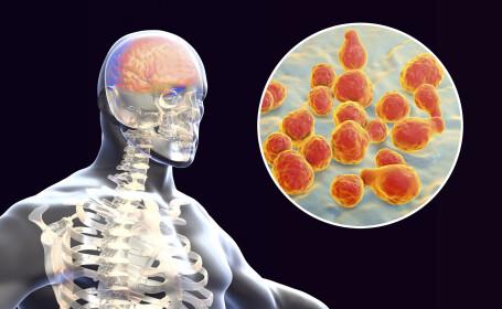 Autorităţile medicale sunt în alertă. În România a apărut un al treilea caz de meningită meningococică