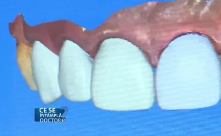 reconstrutie molari