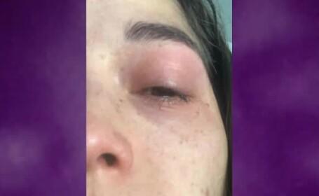 Cadre medicale din Mexico City, atacate de oameni care se tem că răspândesc coronavirusul