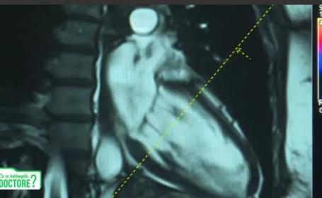 CSID. De ce este recomandată o consultație la medicul cardiolog după infectarea cu Covid-19