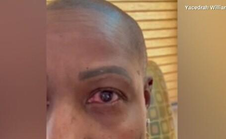 Și-a turnat lipici în ochi, în loc de picături. Cum a scăpat însă de o nenorocire
