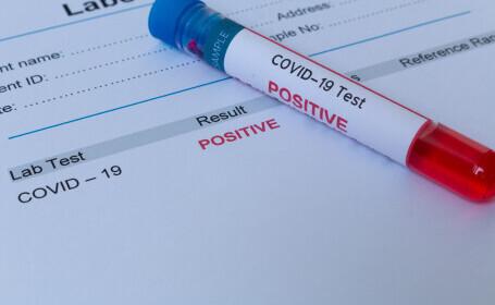 Studiu: Infectarea cu Covid-19 nu garantează protecție împotriva noilor tulpini