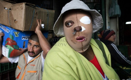 femeie arsa cu acid in Columbia