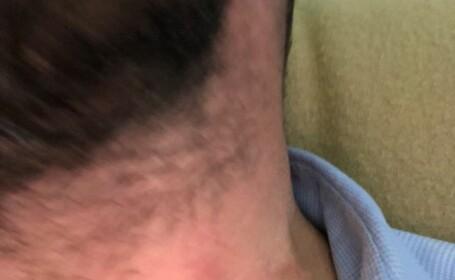Şeful OPC Constanţa, bătut și lăsat fără un dinte în timpul controlului la o terasă din Neptun. VIDEO