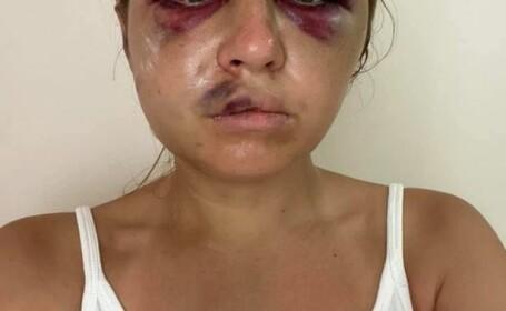 """Vedetă TV, bătută de un bărbat care a încercat să o violeze în fața copilului ei. """"Mami, iartă-mă că nu am putut să te apăr"""""""
