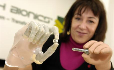 Primul deget bionic! Inventia ar putea ajuta peste 1 milion de europeni
