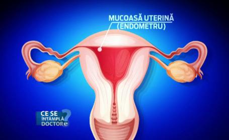Cum sa le explicam adolescentelor ce este menstruatia. Jena parintelui nu face altceva decat sa le sperie