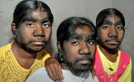 """Mutatia genetica de care sufera numai 1 din 1 MILIARD de oameni. Sunt strigate """"Surorile varcolac\"""
