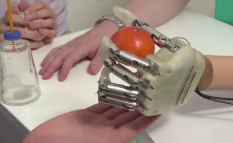 Mana bionica, inventata de medicii italieni. Cum reda proteza inteligenta simtul tactil pentru cei fara brate