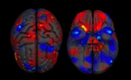STUDIU. Creierul barbatilor este mai mare decat al femeilor. Care sunt zonele cu cele mai mari diferente