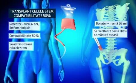 transplant, stem