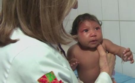 Alerta intr-un oras din Chile, din cauza virusului Zika. 97 de persoane au fost infectate in Ecuador