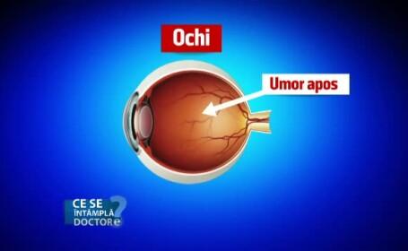 Cum apare tensiunea intraoculara. Contrar confuziei, nu se coreleaza cu cea arteriala