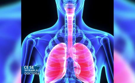 Cât de mare este riscul ca fumătorii să dezvolte pneumonie. Avertismentul medicilor