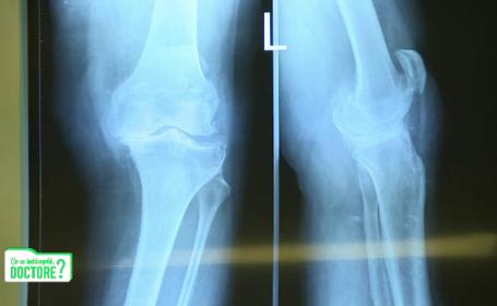 Dezaxarea membrelor duce la artroză. Ce metode de tratament există